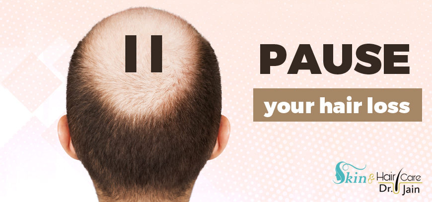 Pause your hair loss